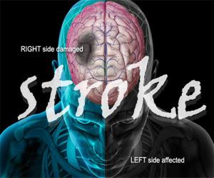 stroke, obat herbal stroke, obat stroke