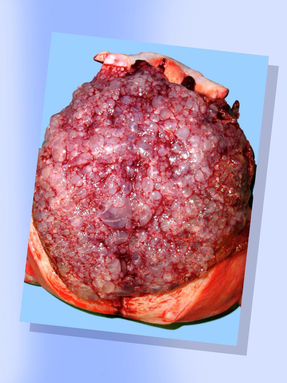 f. kanker leher rahim