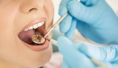 bọc răng sứ có tháo ra được không -10