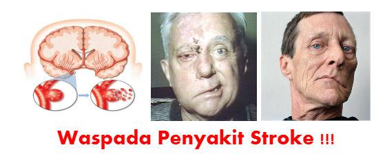 terapi-stroke
