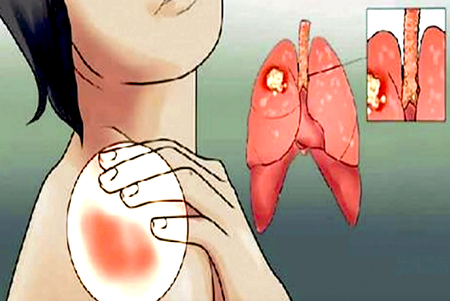 Detect This Early Warning Signs of Lung Disease That Women Should Never Ignore!