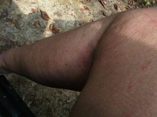 leg with larval tick bites