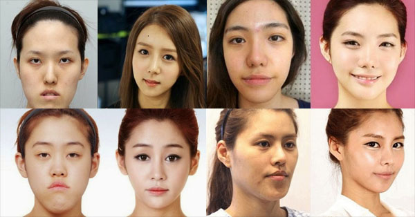 21 Plastic Surgeries In Korea That Will Surely Make You Believe In Magic!