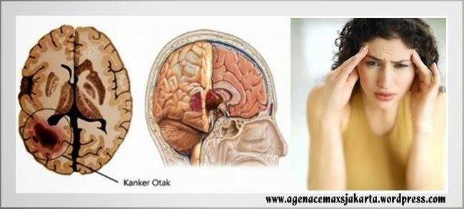 obat penyakit kanker otak tanpa operasi