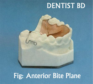 anterior bite plane Mouth Guards and Bite Planes |  PPT
