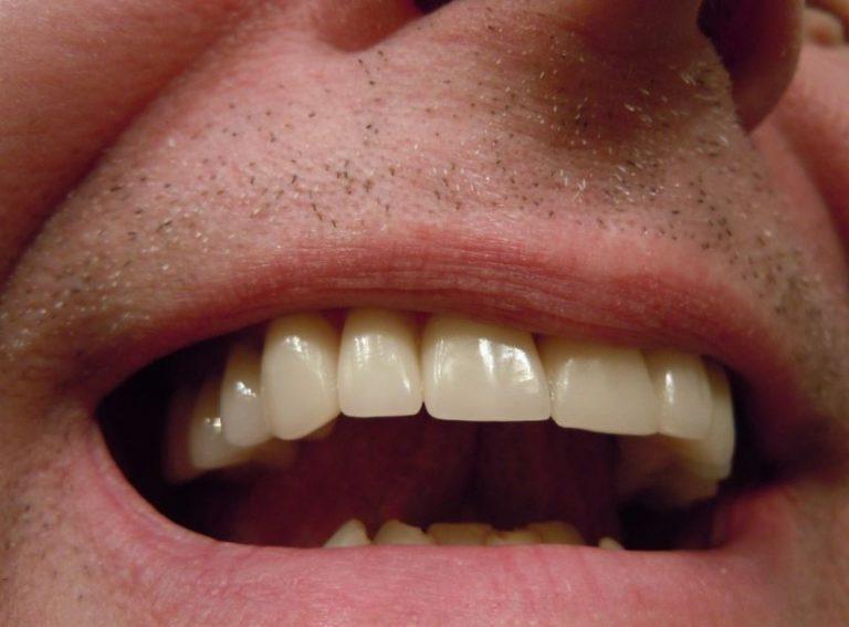 dentalsocialget l astuce naturelle pour un d tartrage des dents maison. Black Bedroom Furniture Sets. Home Design Ideas