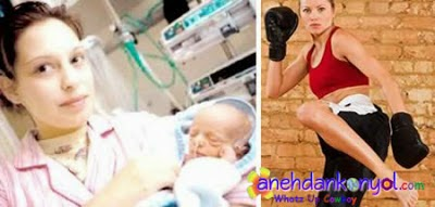 Proses Persalinan Bayi Paling Aneh Bin Ajaib