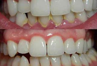 نصائح بعد تنظيف الاسنان من الجير