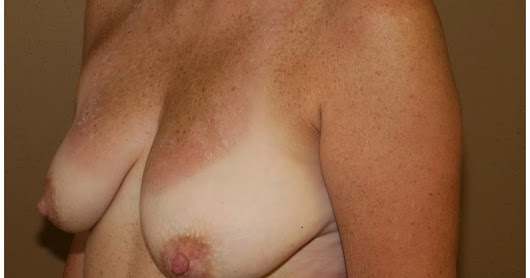 Bilateral Breast Reconstruction Post Masectomies