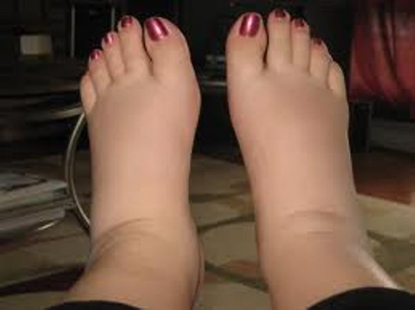 What Foods To Eat For Swollen Feet