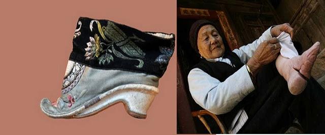 Eski Çin'de Kadın Ayakları