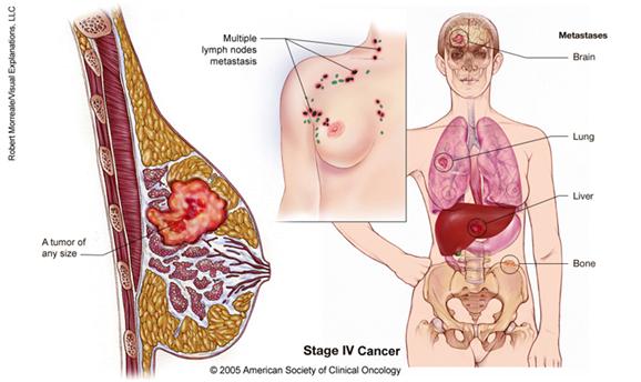 Keperawatan Dan Kesehatan Fibroadenoma Mammae