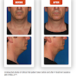 Say Hello Kybella, Goodbye Double Chin!