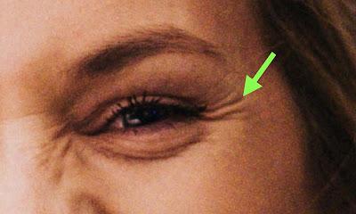 """La imagen señala con flecha verde la aparición de las arrugas en los laterales del ojo que se denominan """"patas de gallo"""""""