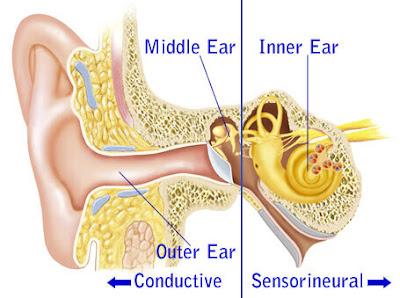 sensoneural-hearing-loss