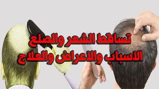 تساقط الشعر والصلع الأسباب والأعراض والعلاج