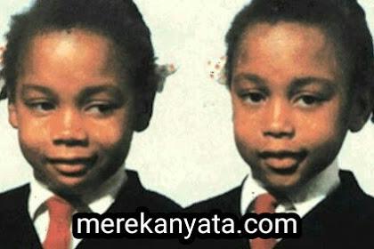 Misteri The Silent Twins, Si Kembar Yang Tak Mau Bicara