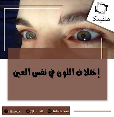 اختلاف لون العيون
