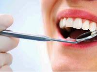 Gimana Rasanya Cabut Gigi ke Dokter?