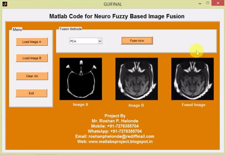 Matlab Code for Neuro Fuzzy Based Image Fusion Using Image