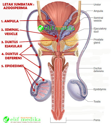 (Gambar1) Ilustrasi lokasi sumbatan pada azoospermia obstruksi.