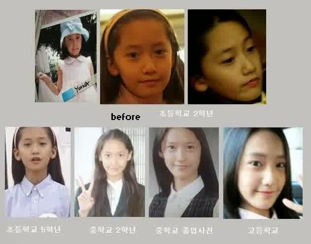Foto park shin hye sebelum operasi 2