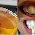 Yellow and dirty teeth? Get white and shining teeth in just 5 minutes
