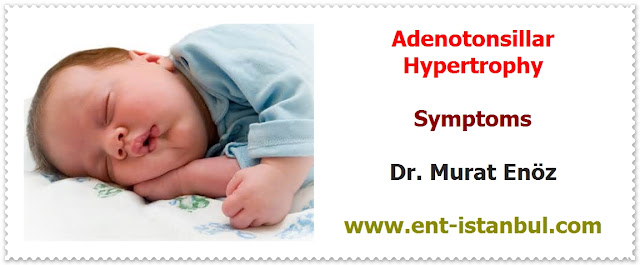 Definition of Tonsils and Adenoids - Why Tonsils and Adenoid Enlarged? - Symptoms of Enlarged Tonsils and Adenoid - Negative Effects of Adenotonsillar Hypertrophy on Child Personality and Behavior - Tonsillar Asymmetry