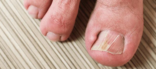remedios para curar las uñas encarnadas
