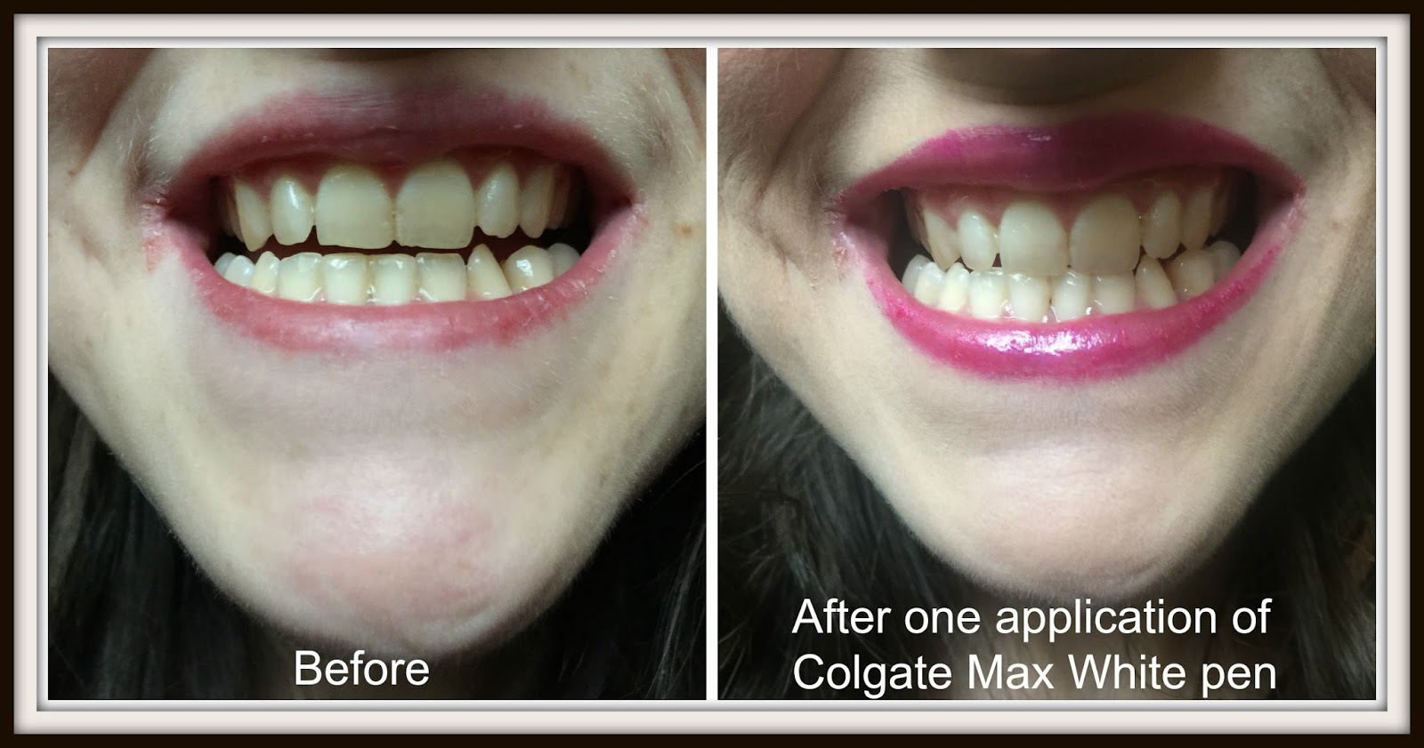 Get Your Smile Up To 3 Shades Whiter With Colgate Max White Expert