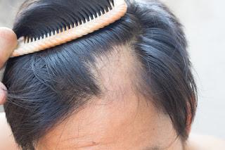 alopecia zaragoza