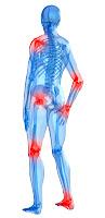 Síntoma de cáncer dolor frecuente articulaciones