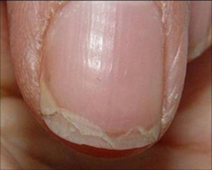What causes splitting nails - Awesome Nail