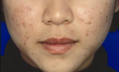 Tips dan cara menghilangkan flek hitam di wajah