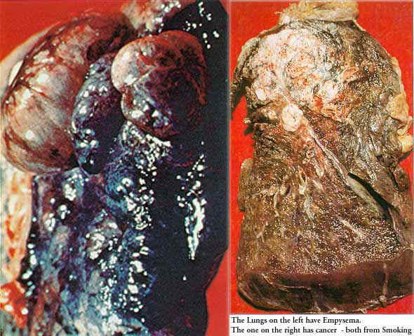 Asbestos Fibers In Lungs : Asbestos elkhart independent school district