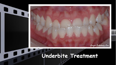 Underbite & Missing Teeth Treatment Video, Georgia Orthodontic Care, Lawrenceville, 30043