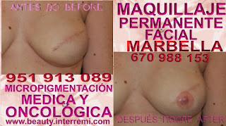 Tratamiento Cicatriz pecho Rellenos de la areola pechos despues de una mastectomia