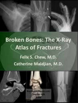 Broken Bones - The X Ray Atlas of fractures [EPUB]