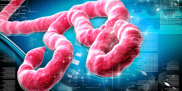 New Zealand researcher: Ebola linked to deforestation
