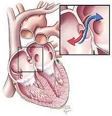 Penyembuhan Penyakit Jantung Bocor Pada Anak