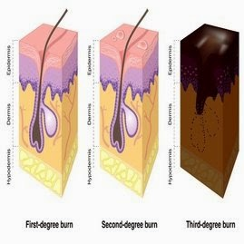 yaitu homogen cedera pada kulit yg disebabkan oleh panas Cara Alami Mengobati Luka Bakar dan Bekasnya