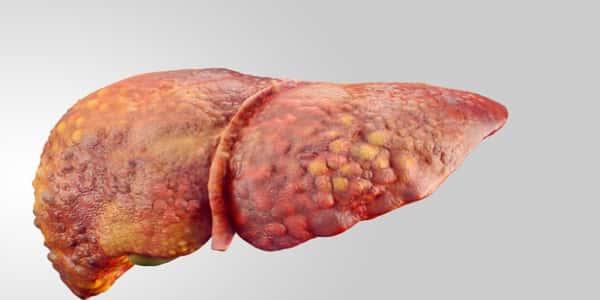 سرطان الكبد Liver Cancer