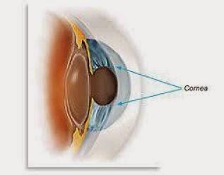 Bahaya Softlense Bagi Mata