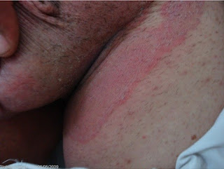 Salep Obat Gatal Alergi Di Selangkangan Cepat Kering