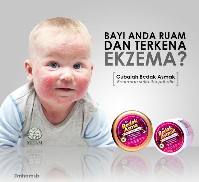 Bagaimana Cara Merawat Ekzema Dan Psoriasis | Penyakit Kulit Ekzema Pada Bayi