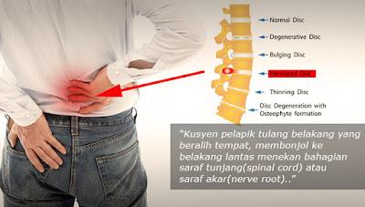 atasi sakit belakang akibat slip disc