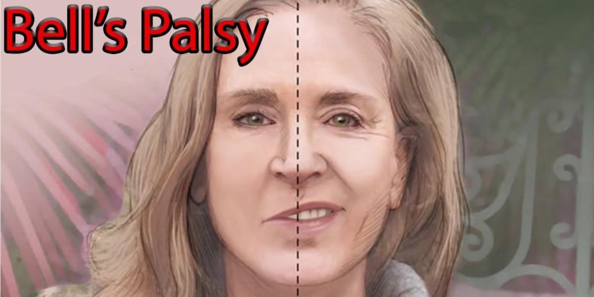Cara Mengobati Wajah Lumpuh Sebelah Karena Bell's Palsy