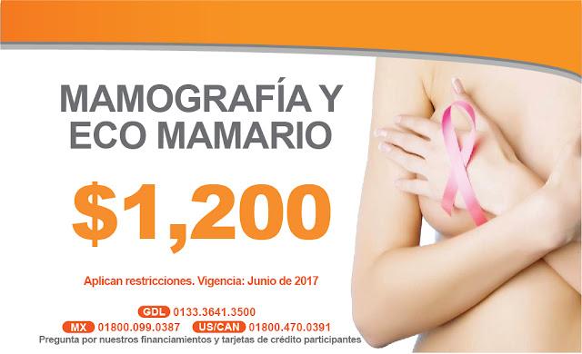 Paquete de mastografia y ecosonograma o ultrasonido mamario