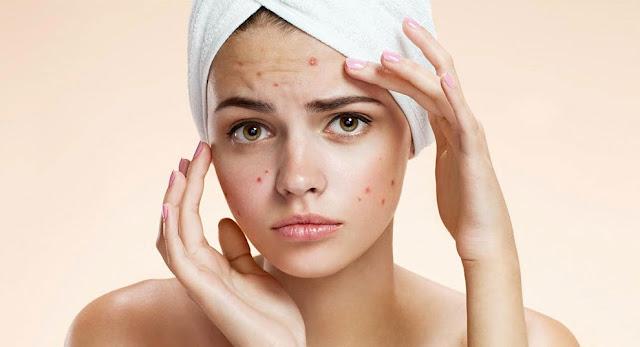 tea tree oil acne overnight