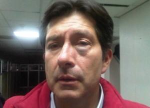 César Montúfar fue golpeado tras sabatina